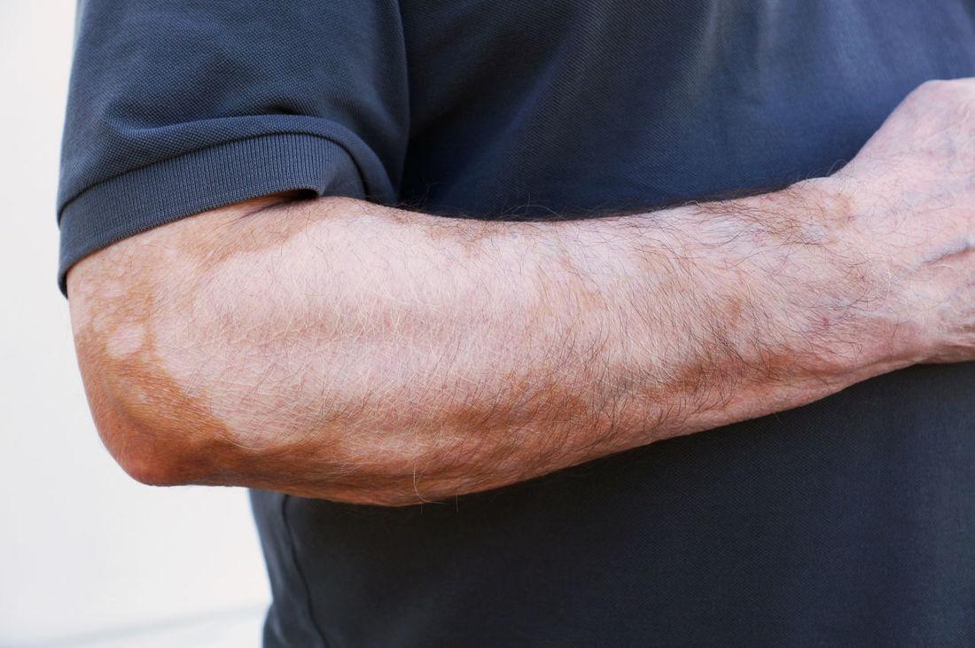 Vitiligo is a medical condition causing depigmentation of patches of skin. Arm Autoimmune Blotchy Condition Depigmentation Disease Disorder Health Medical Melanocytes Patches Patchy Pigment Skin Skin Condition Unrecognizable Person Vitiligo Weißfleckenkrankheit White