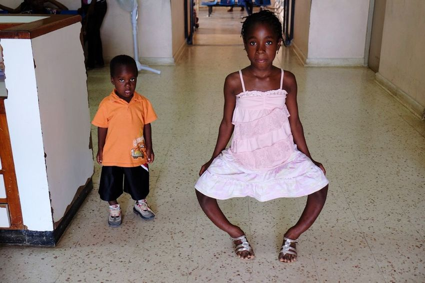 The Human Condition Medical ISMSOperationKids Orthopedics Jamaica Pediatrics Humanitarian