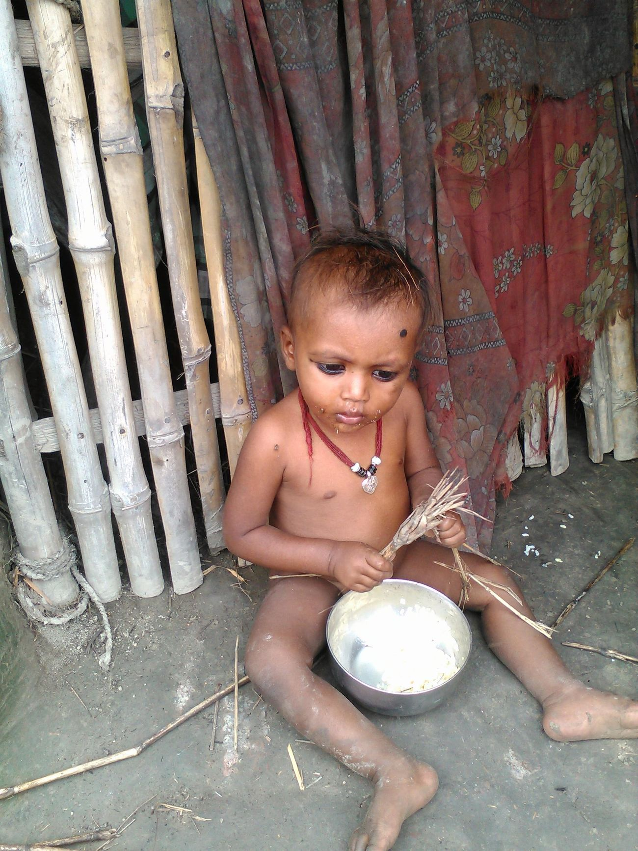 Malnutrition Poverty