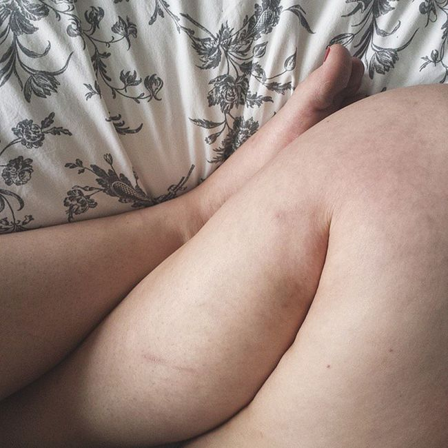I bare my legs often, even though they are covered in bruises and scars and scratches. These are marks that remind me that I am able-bodied and have a home full of cats that I love and love me. I used to be worried of what people might think of such things. But now? Who cares. 💜 Effyourbeautystandards ProudToBeMe