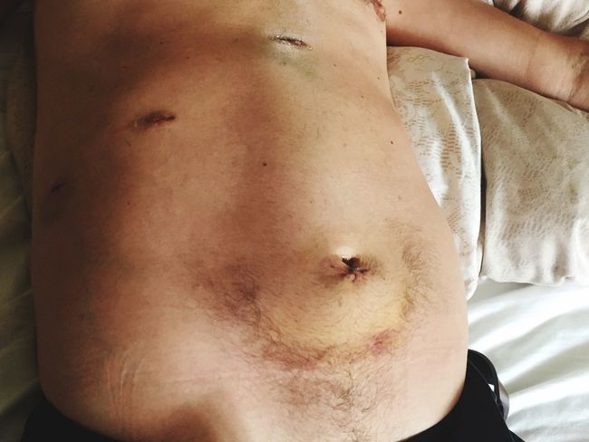 Laparoscopy Tummy Gallbladder Removal One Male Post Operation Keyhole Chirurgy Hospital Care Medecines Colour Image Cuts Injuries Healing