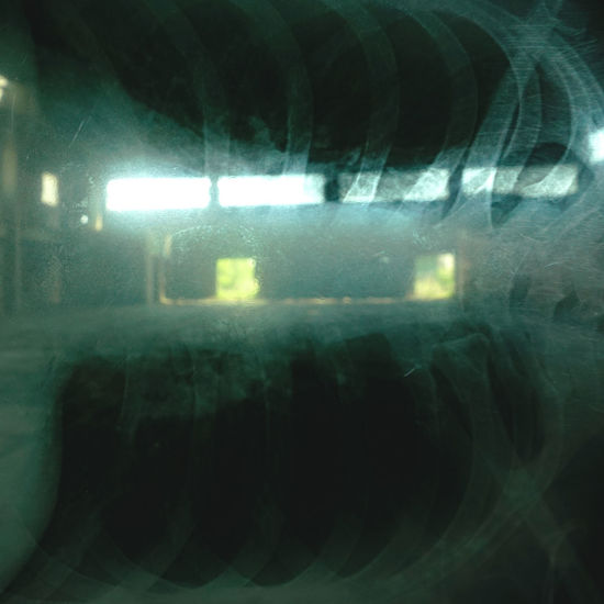 Attack Close-up Depression Depression - Sadness Empty Epilepsy Epileptic Fit Illuminated Indoors  Mental Disorder Mental Health  Night No People Sorrow Window