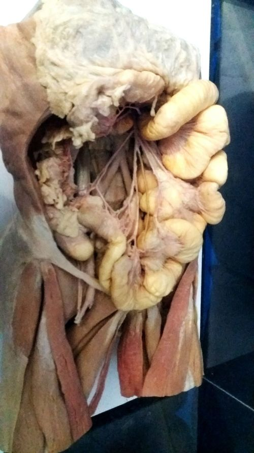 Intestines Bodiesexhibt Intestines Humanbody Bodies Expo Anatomy Viña Del Mar