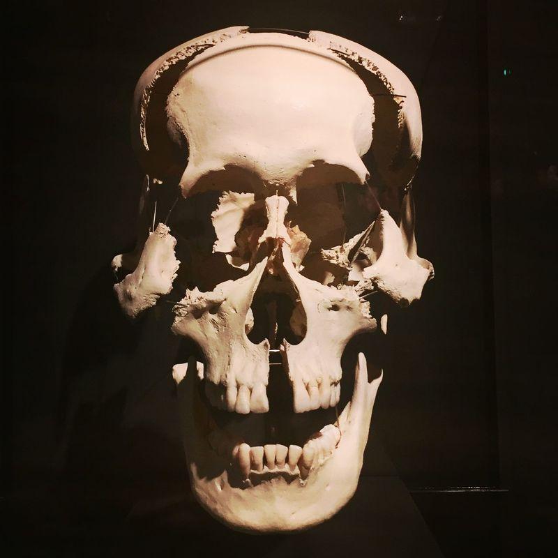 Black Background Bodyworlds  Close-up Dark Gunther Von Hagens Illuminated No People Still Life
