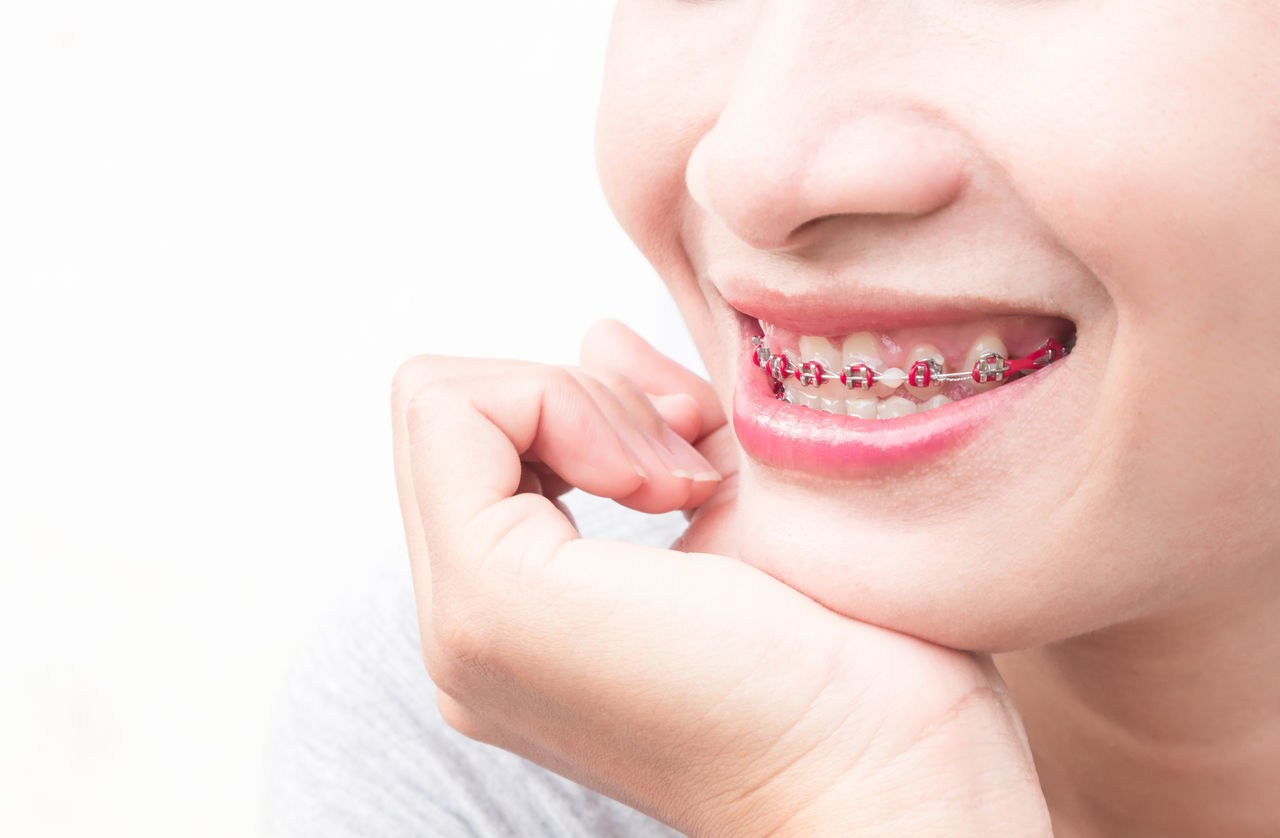 Close up woman smiling with Ceramic and Metal Braces on white background, beauty and healthy concept Adult Adults Only Beauty Ceramic And Metal Braces Chin Close-up Healthcare And Medicine Human Body Part Human Face Human Lips Human Mouth Human Teeth Miles Away One Person One Woman Only One Young Woman Only Only Women People Studio Shot White Background Young Adult Young Women