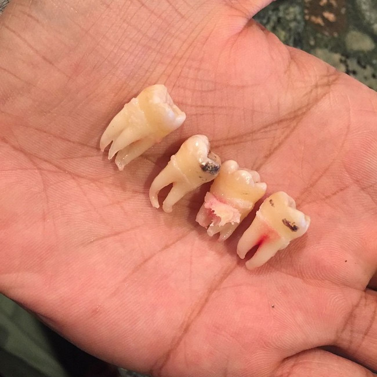 Four out, little less wise Wisdomteeth Planted1987 Gonebutstillinpain