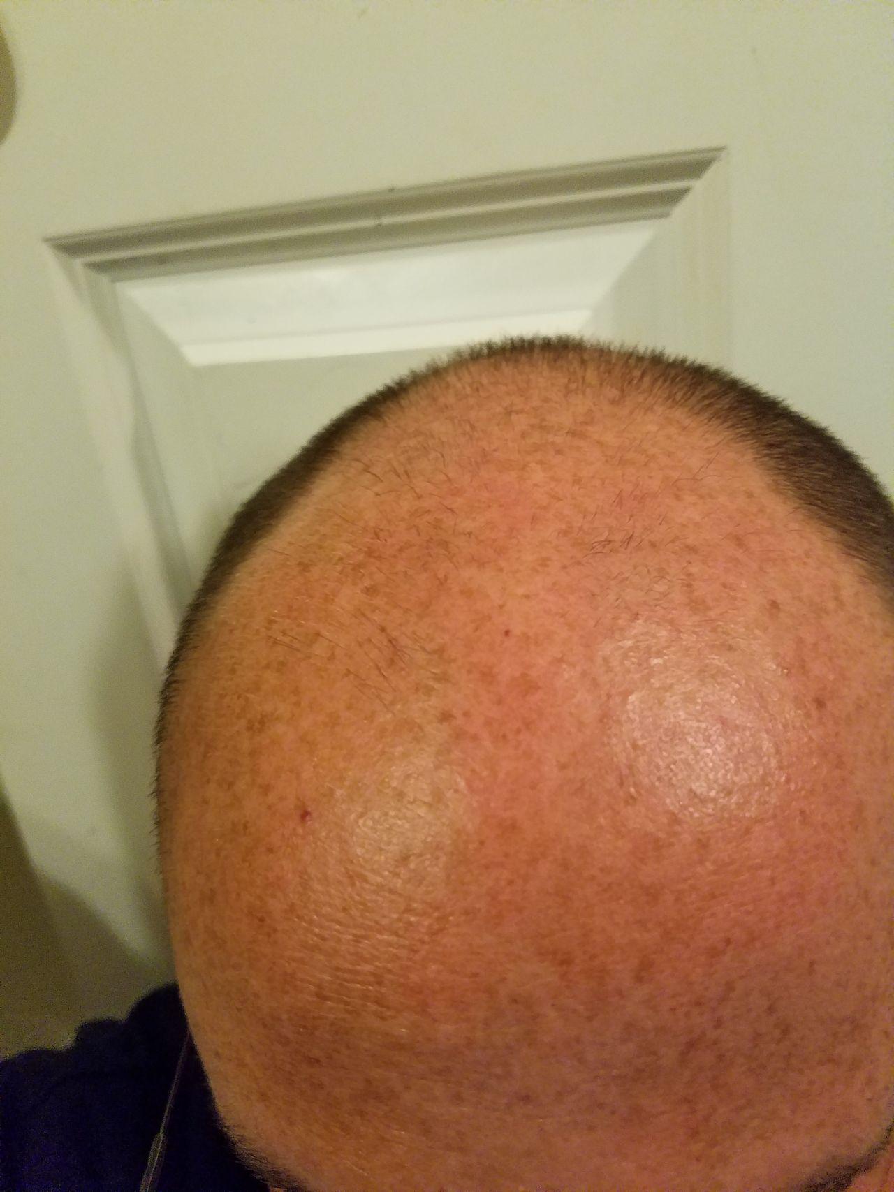 Bald Balding Hairless