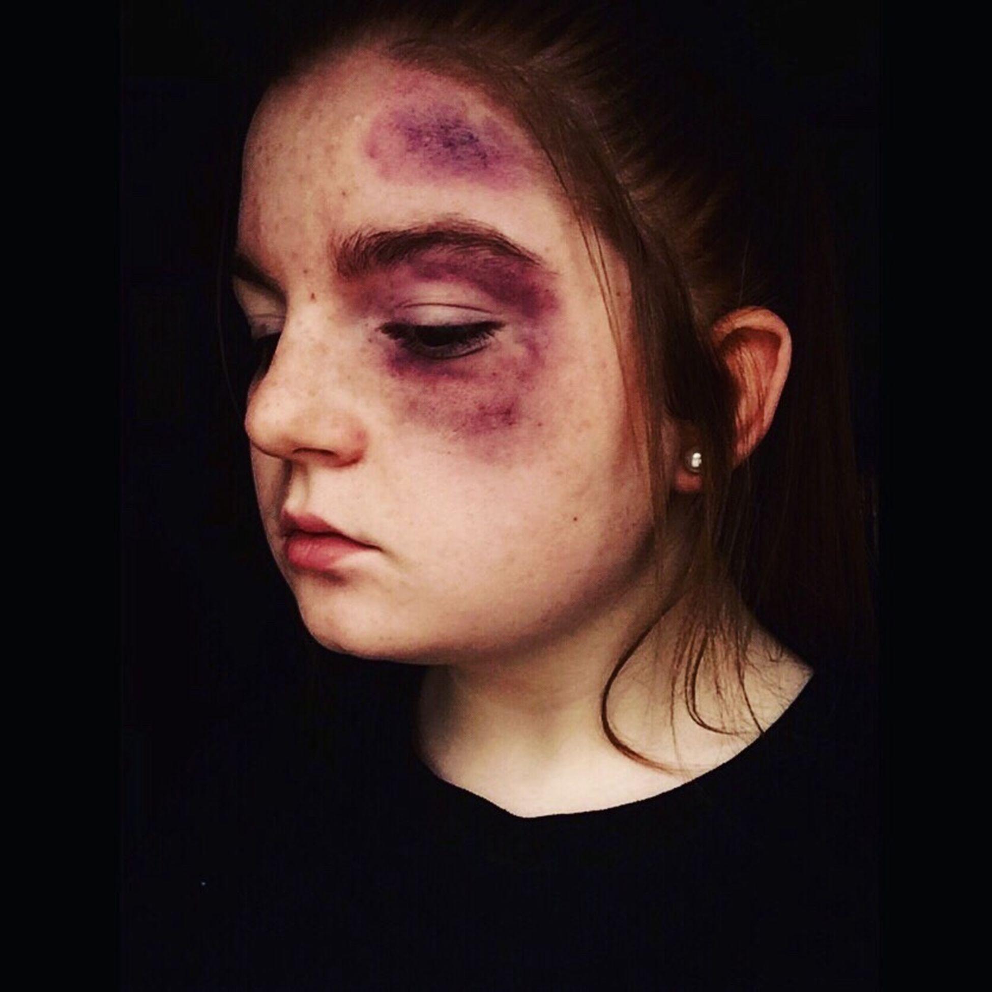 Beaten. Bruised