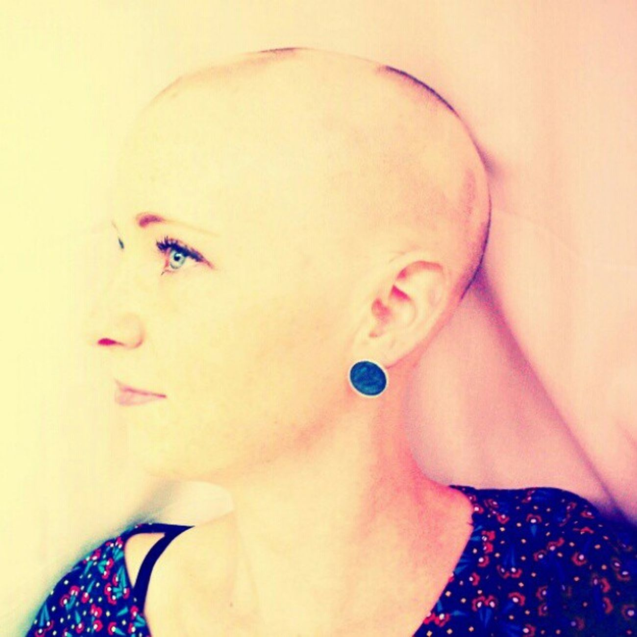 Found another alopecia pic. Alopeciaawareness Alopecia Alopeciaareata Aa nohairdontcare baldandbeautiful bald baldgirl