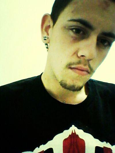 I Fckd Up My Face Due 2 Anger Probluhmsz O.O Ha .