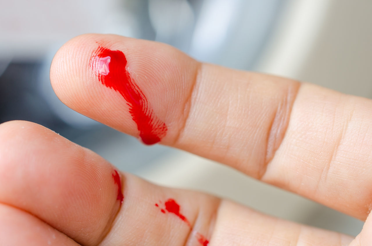 human body part, human hand, red, physical injury, human finger, healthcare and medicine, real people, wound, one person, close-up, human skin, indoors, women, day