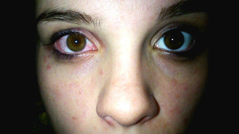 Eye Blood Beautifuleye Photography Night