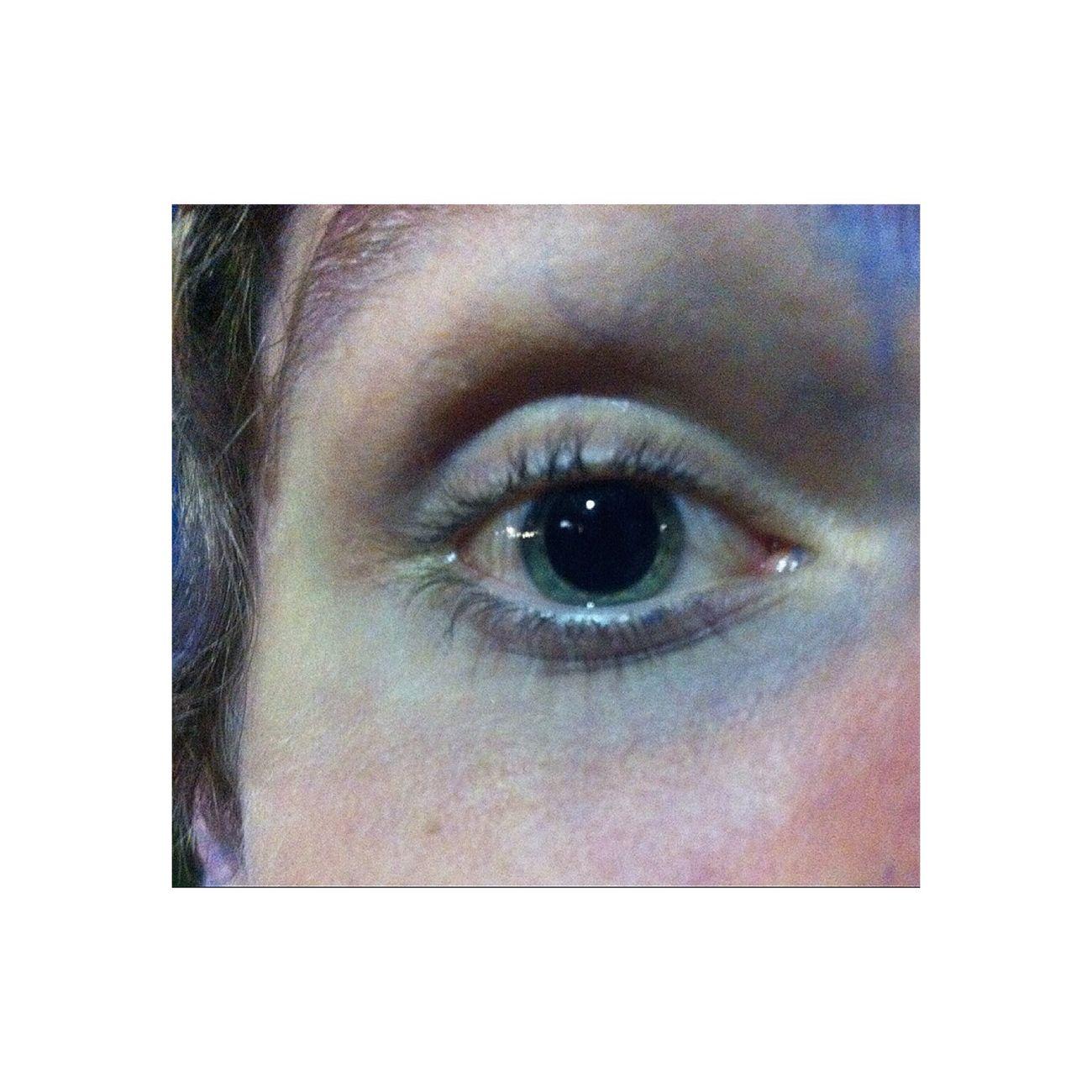 Amd Extasy Drogue pupille dilaté.