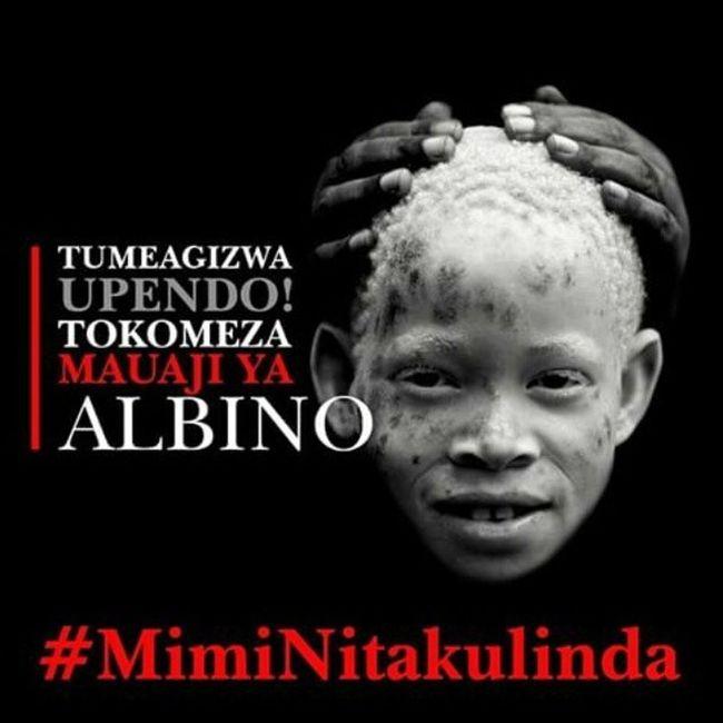 U r as human as we r... BornEqualColorDoesNotMatter MimiNitakulinda IWillProtectYou AlbinoLivesMatters