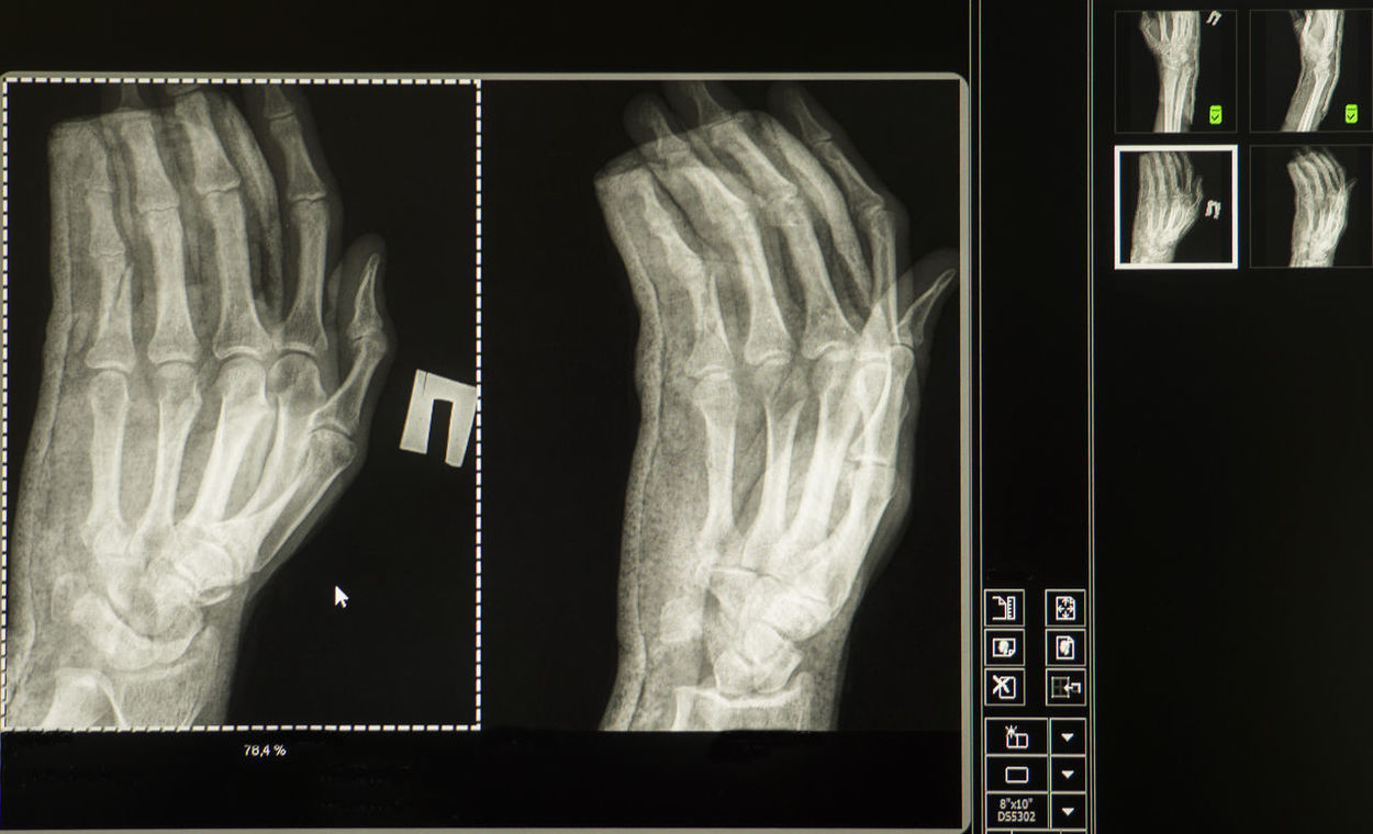 X-ray of a broken man's right hand on a computer monitor Broken Close-up Communication Computer Hand Health Man's Medicine Monitor Right Window X-Ray