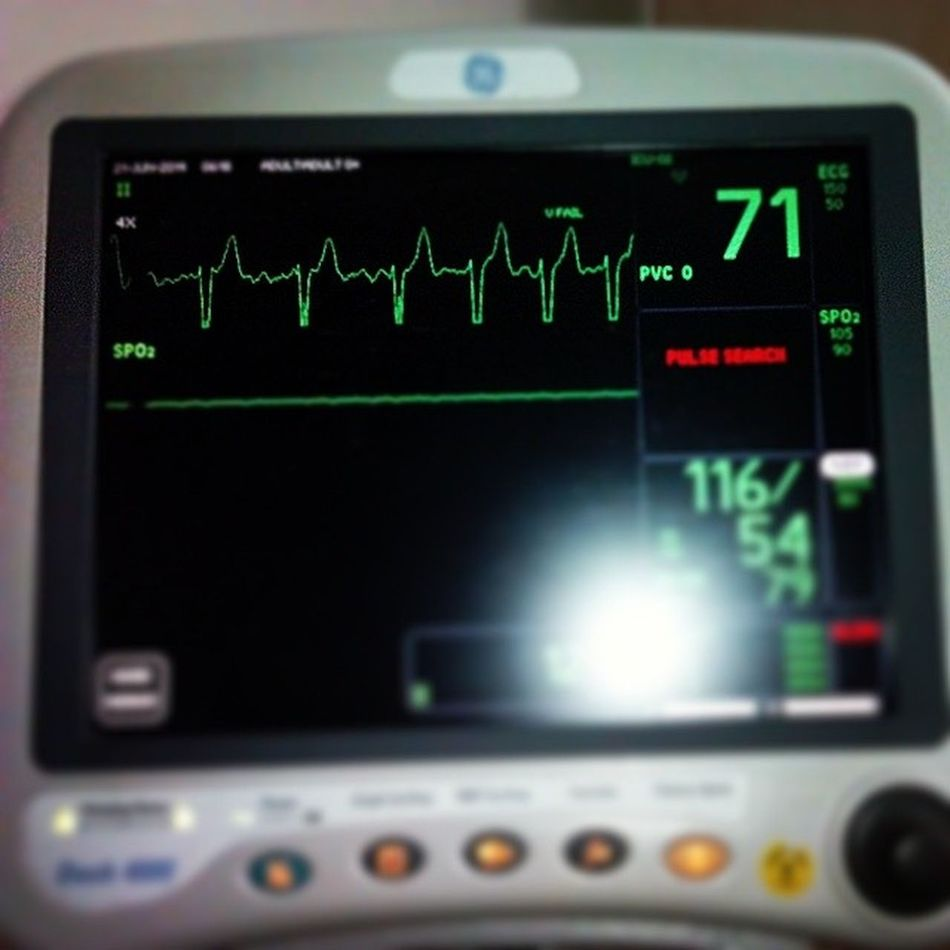 This tracing is not good. Poor thing. ECG101