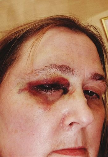 What a fight! Human Black Eye Should Be Here What Pain Close Up Eye Hit Me With Your Best Shot I Dare You Close-up One Person Adult Human Eye Eyes Closed