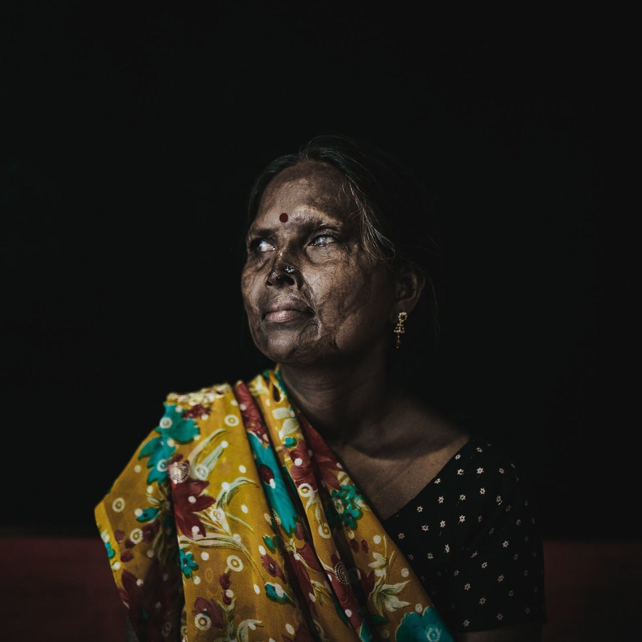 The Photojournalist - 2016 EyeEm Awards Geeta was lying on her cot, her two small daughters cradled at each side. The night was like any other for the 23-year-old mother living with her husband and her in-laws in a slum in Agra, India. But Geeta knew something was wrong. Things with her husband had become unusually tense after the birth of her daughters. Geeta felt it had something to do with her husband desperately wanting a son -- as many Indian men do. The lack of a son could mean that he would lose his rights to family assets, which could be claimed by other family members. The beatings started around that time. Often, he would come home drunk and physically assault her. Tonight, though, the house was quiet. Geeta shut her eyes and tried to go to sleep. In an instant, her face was consumed with unbearable pain. Her daughters were screaming. Geeta's husband had thrown acid on all three of them as they slept. Despite the pain, Geeta rushed herself and her daughters to the nearest police station. She still remembers every detail of that night, more than two decades ago, that changed the course of her life. Weeks later, one of her daughters succumbed to her injuries and died. The other daughter, Neta, then 3, would grow up in shameful isolation, without a face and nearly blind.