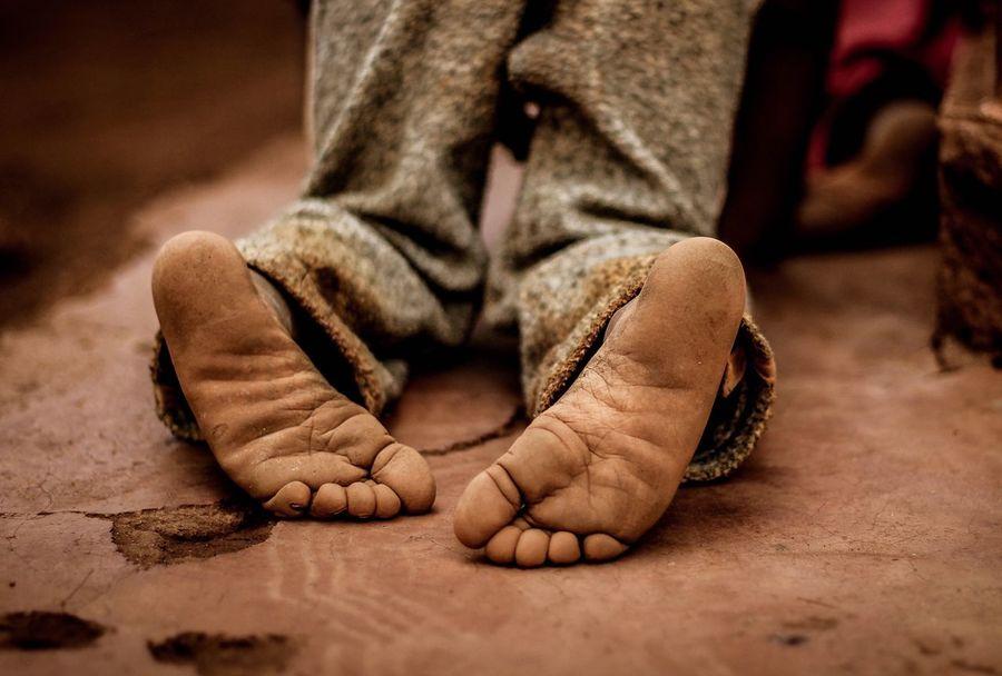On his knees - Kenya 2017 Human Leg Human Foot Barefoot Real People Close-up EyeEm Selects Africa Volunteering Children Only EyeEmNewHere African Child Kenya Children Of The World Outdoors Poor Kids Innocent Photography Innocence Hope Childhood People EyeEm Selects