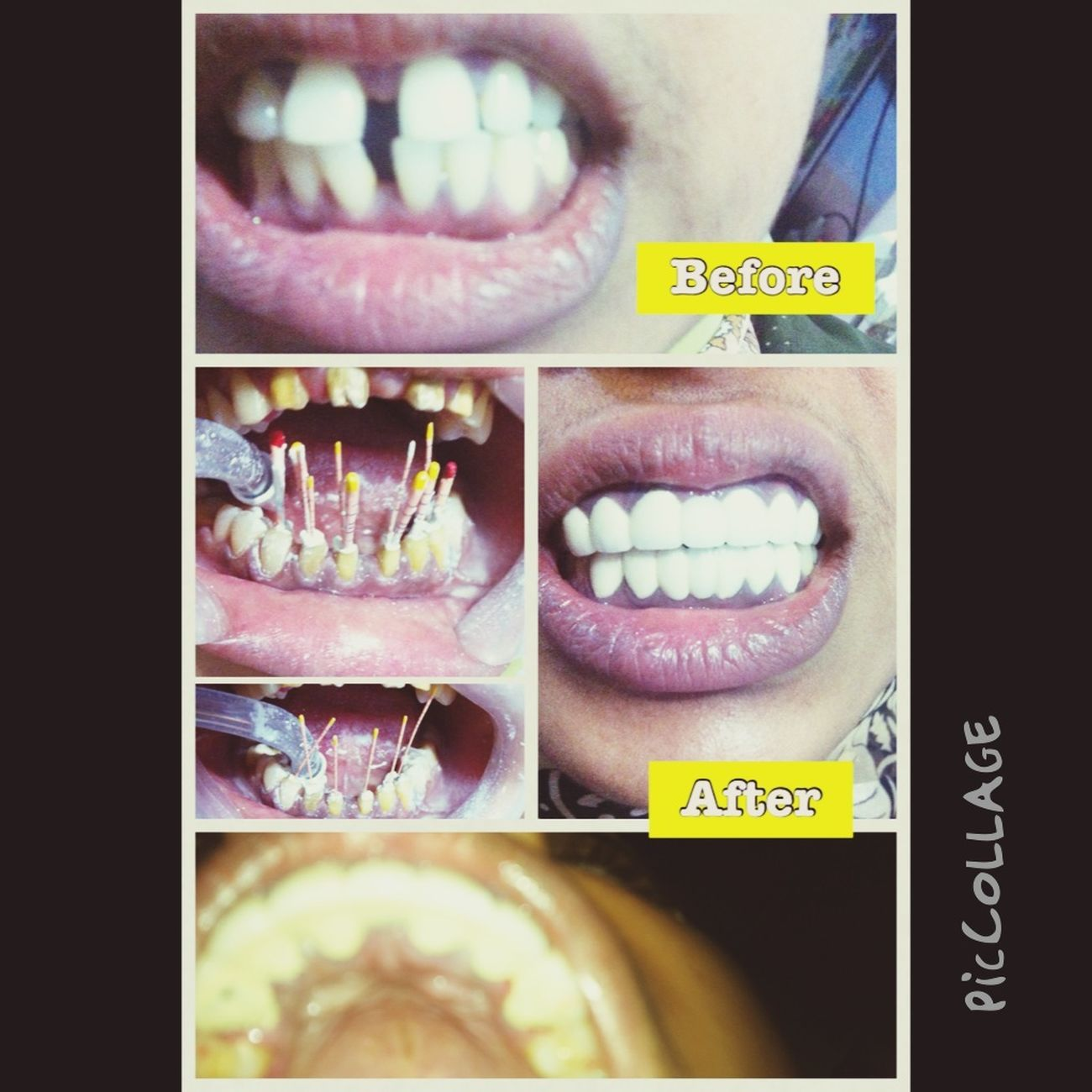 Orthodontic treatment changed by conservative treatment