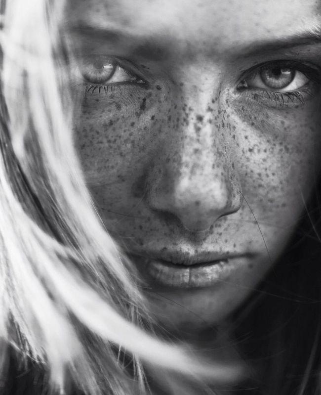 Freckle Fascination.
