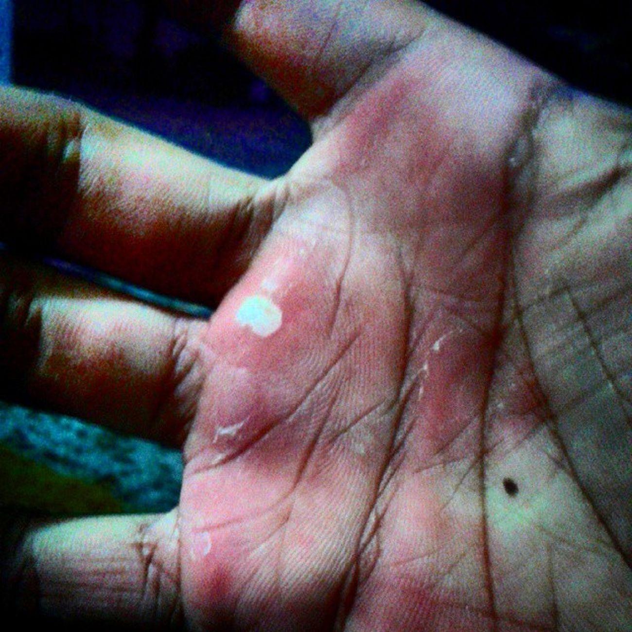 Auch. Danzaaerea Aro Fly Hands dolor