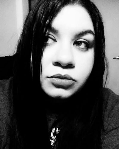 Eyes Upclose  That's Me Scarred Scar Perfect Imperfection Hair Long Hair Mouth Lips Face Life . Showing Imperfection