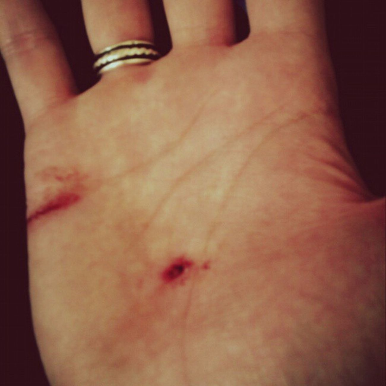 Airsoft is rough, missed a 10cm nail on my fall but still look like jesus hand. Airsoft Airsoftinjuries Nopainnogain Bestgameever