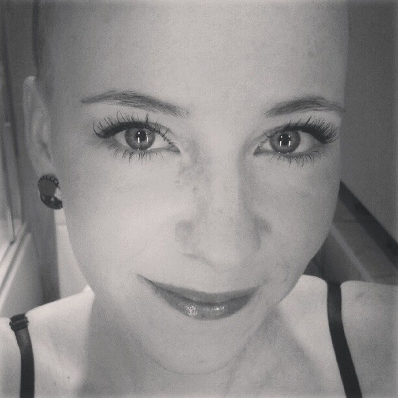 Face! Alopecia Rockyourbald Alopeciaawareness Alopeciaareata bald baldgirl nohairdontcare