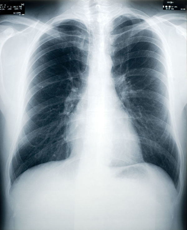 An x-ray of a healthy male chest and lungs (identity numbers and dates have the obfuscated) Black Bone  Bones Chest Close-up Medical Rib Cage Ribs Scandinavia Shoulder Stomach Tuberculosis Screening White X-Ray