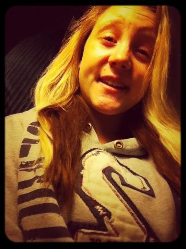 Dimples ?(: