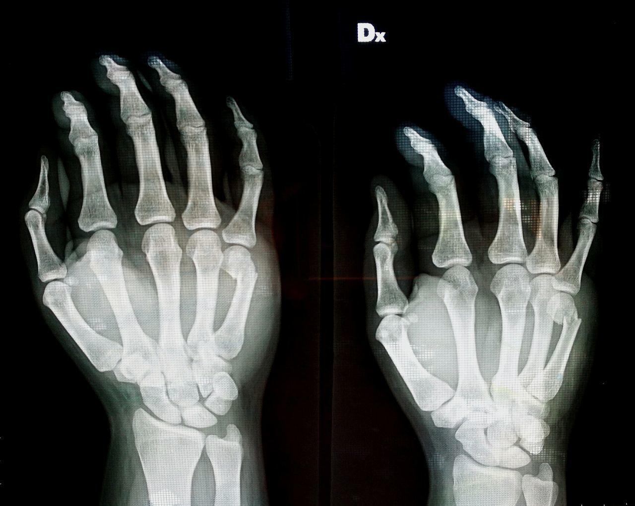 """""""My broken fifth metacatpus"""" No People Bones Bone  Bone Collector Broken Bone Metacarpus Broken Metacarpus"""