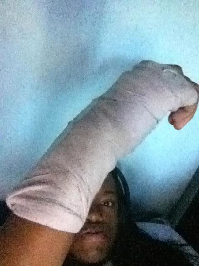 I Fractured My Thumb :(