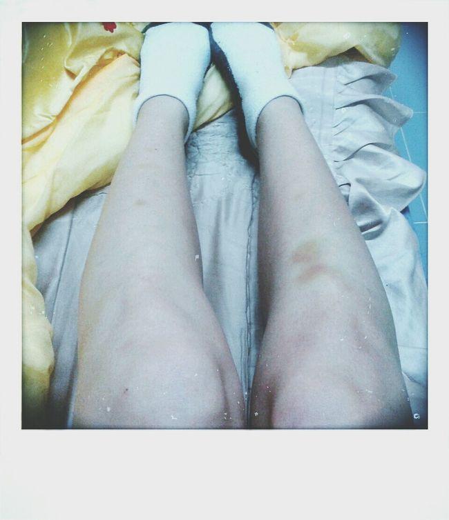 my ugly legs Legs Socks Oh My Genes Fat