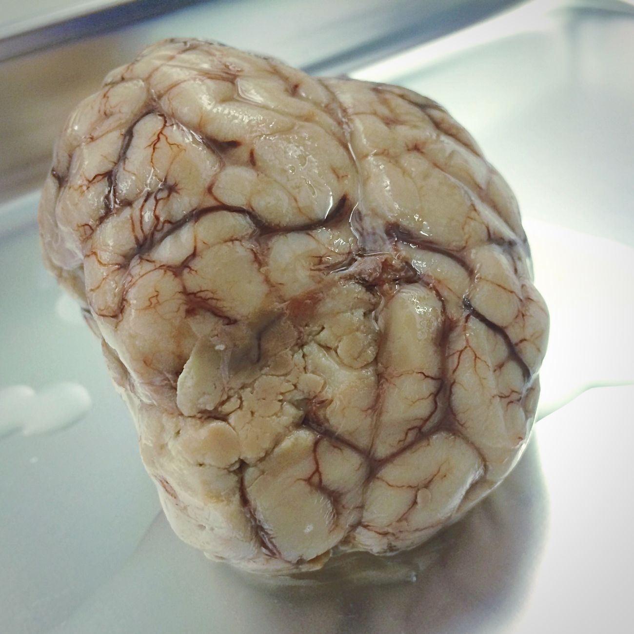 Get mental First Eyeem Photo Brain Dissection Anatomy Neurosurgery Cortex Biology