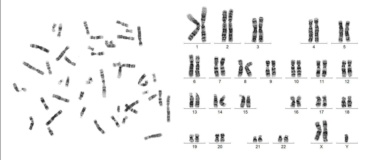 Sorry guys! These are work photos, but the only ones I sell...🤔So bear with me... This one is a male with 2 X chromosomes→Klinefelter syndrome 47,XXY Cytogenetics Chromosomes Human Karyotype Karyotype Klinefelter Syndrome Science And Technology GTG Banding Scientific Photography Metaphase