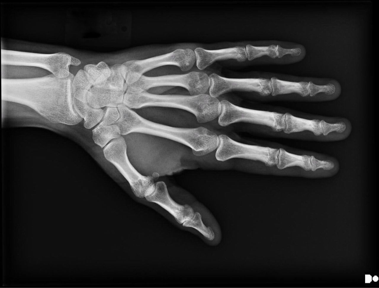 So what you can't see in this image is a sprain of my radial collateral ligament after whacking it with hammer. I inadvertently mistook my hand for a chisel. Those armchair radiologists out there will notice the beginnings of arthritis in some of my fingers. Oy. Human Skeleton No People Bone  Close-up Healthcare And Medicine Science Biology Indoors  Black Background