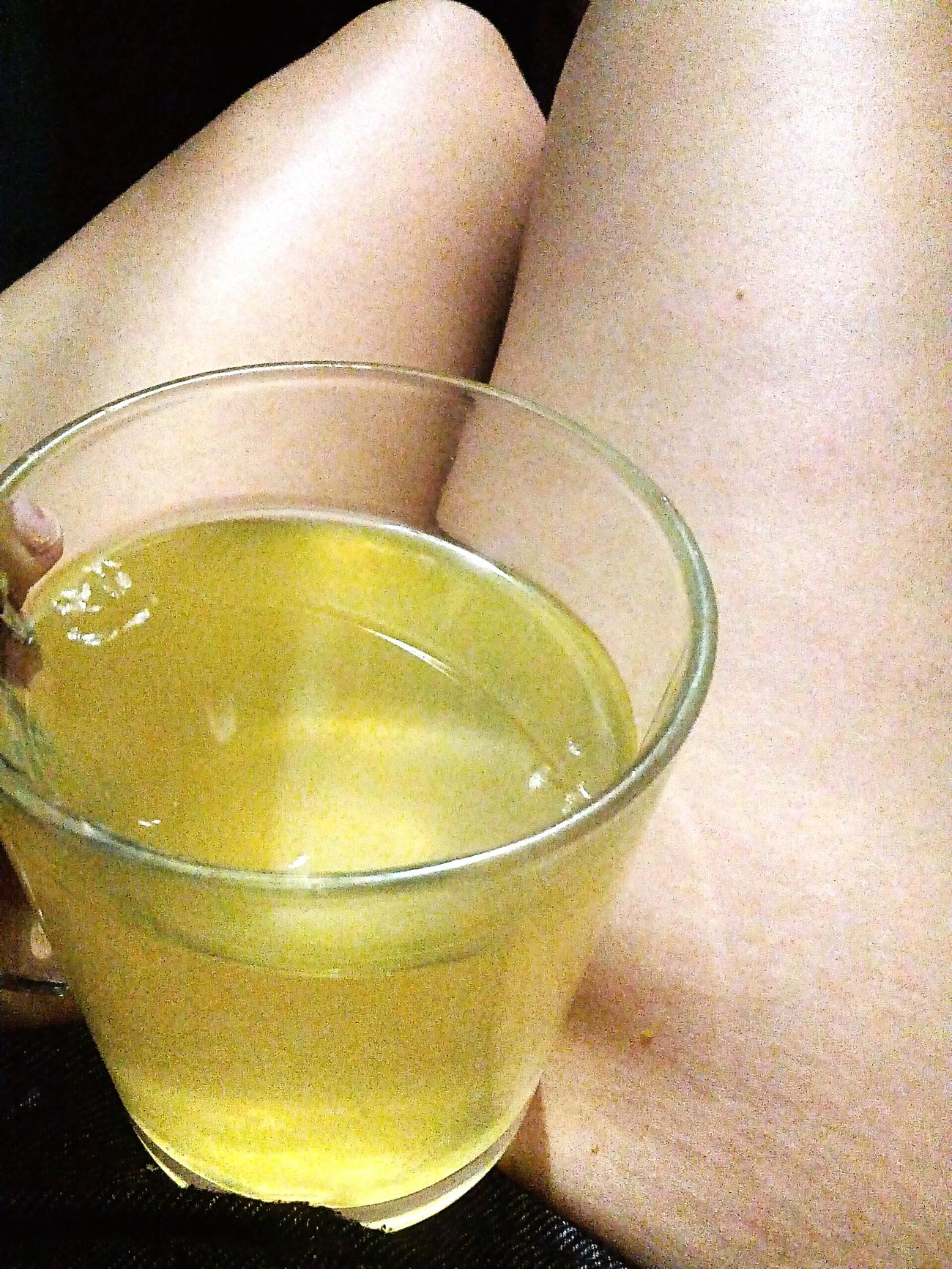 Hello World stretch marks Lemon And Honey