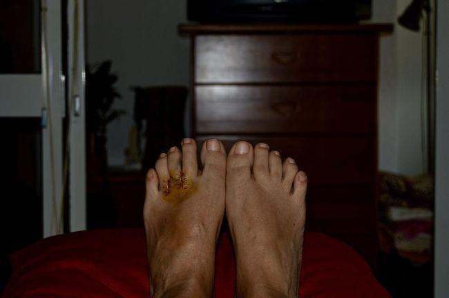 EyeEm Best Shots EyeEm Gallery EyeEmBestPics Feet Mortonneuroma Recovering Surgery Ugly Feet Two Is Better Than One