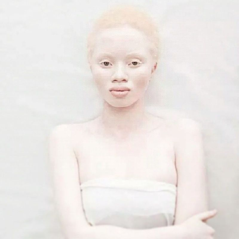 Love the skin ur in..... Believeinyourself Beyourtureself LoveYourself Lovethyself LuvuLuvu live lovetheskinyourin youarebeautiful in every single way..... pale milk pout lips albino modelbahavior strikeapose shorthairdontcare you are worthy elegance poised alluring