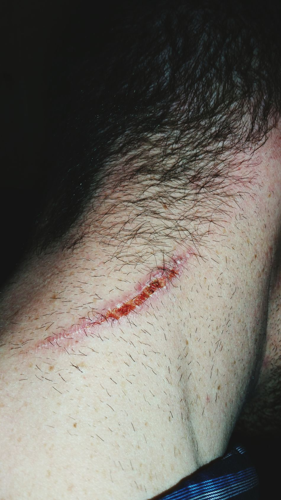 Wounded Booboo Scabs Scab Scar Wound People Adult One Person Human Body Part Close-up
