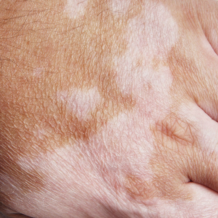 Vitiligo is a medical condition causing depigmentation of patches of skin. Autoimmune Blotchy Close-up Condition Depigmentation Disease Disorder Full Frame Hand Health Medical Melanocytes Part Of Patches Patchy Pigment Skin Skin Condition Vitiligo Weißfleckenkrankheit White