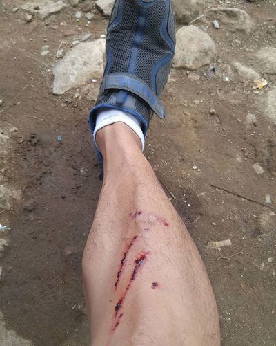 This is what happened when You not gear up 😂😂😂 Bycicle Fatbike Fatbikeworld Downhill Val  2016 LGG4 LG  G4 Blood 😚