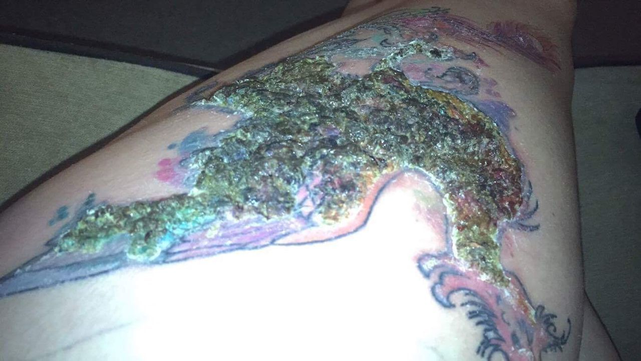Tattoo infected tattoo Scab infection