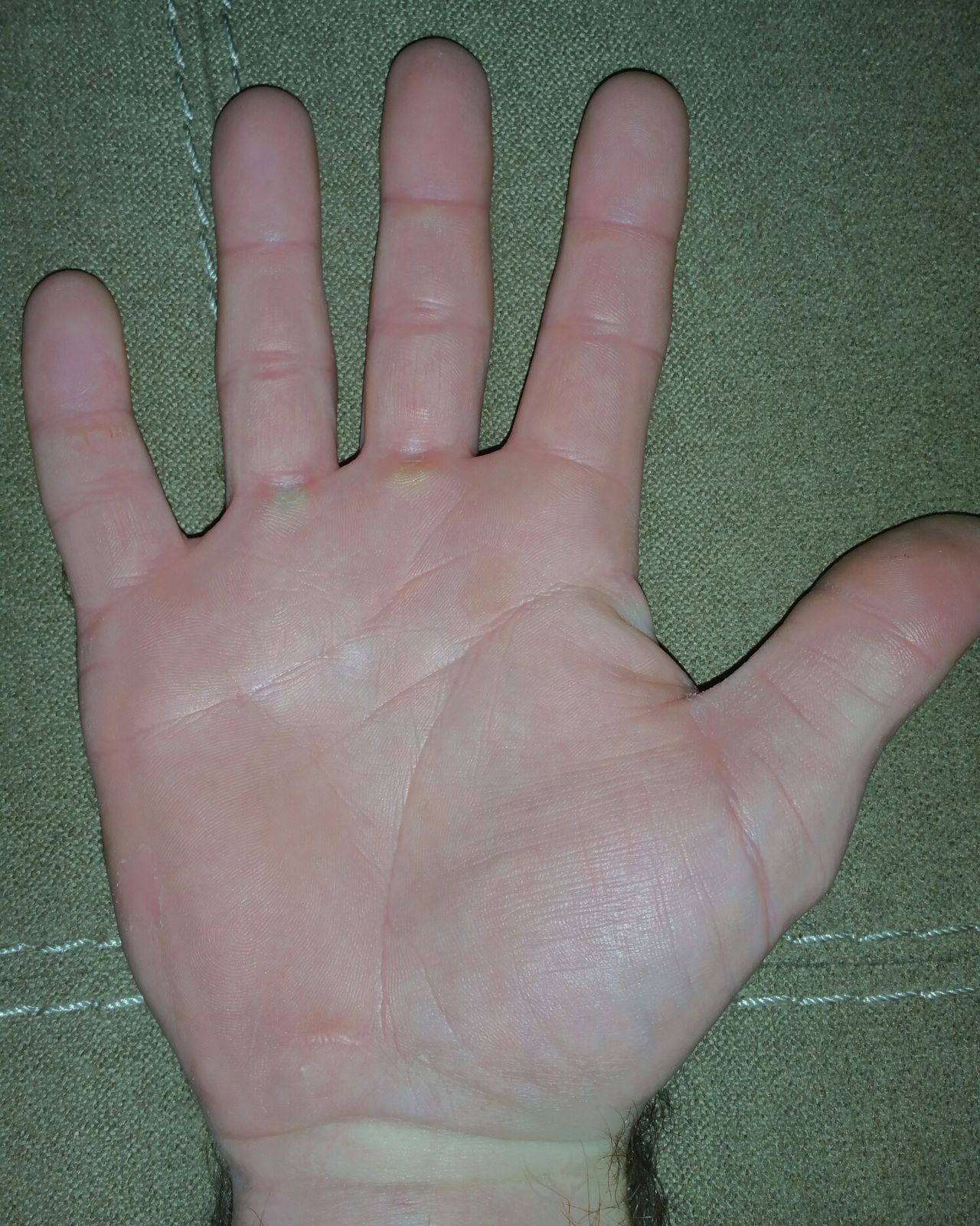 Human Body Part Human Finger Close-up People Person Hand Working Hands Calloused Hands Calloused Callouses Hard Worker Hello World Palm Palms Fingers