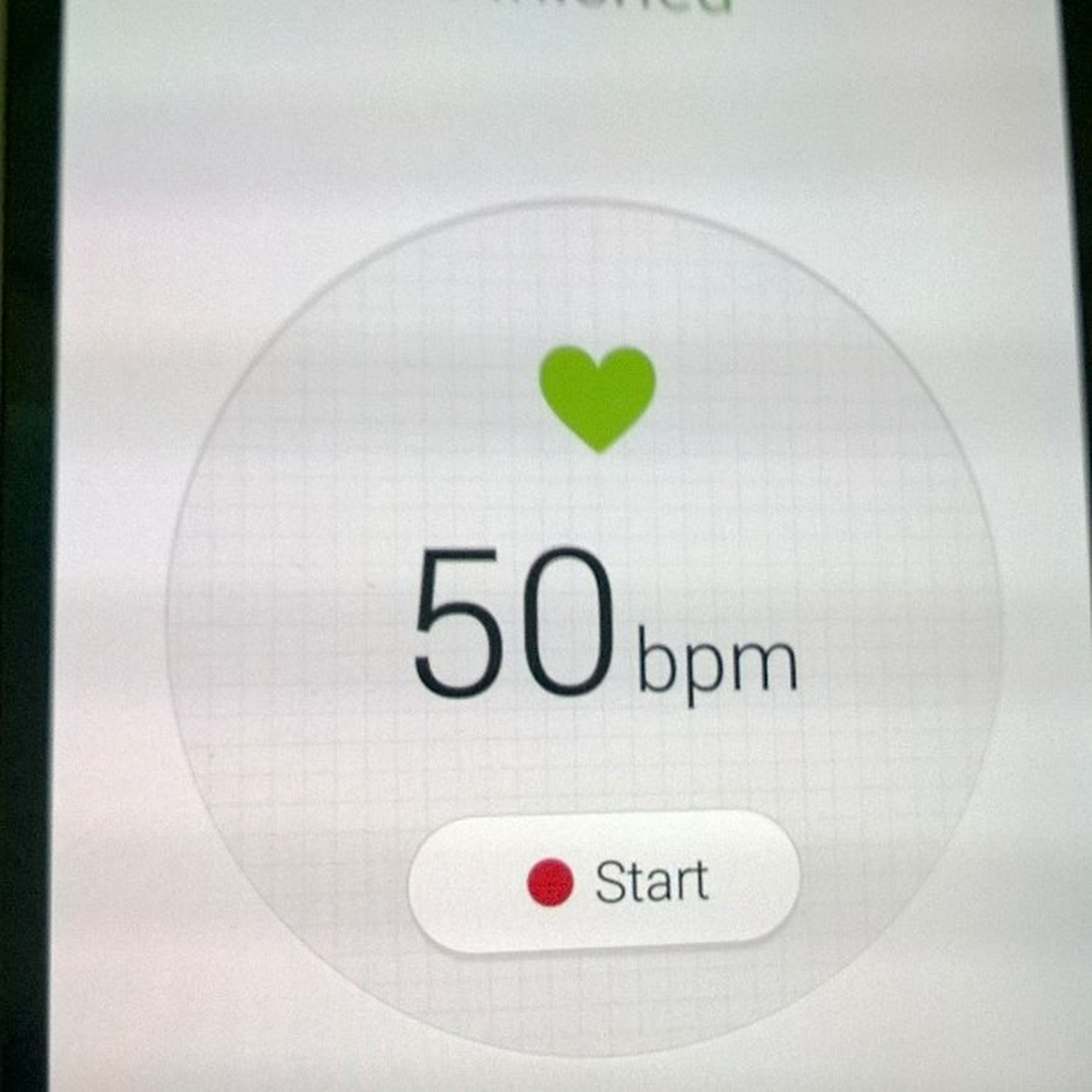 My baseline heart rate waking up to an uneventful oncall. Last case was before midnight. Happy Postcall AkuTakJonah