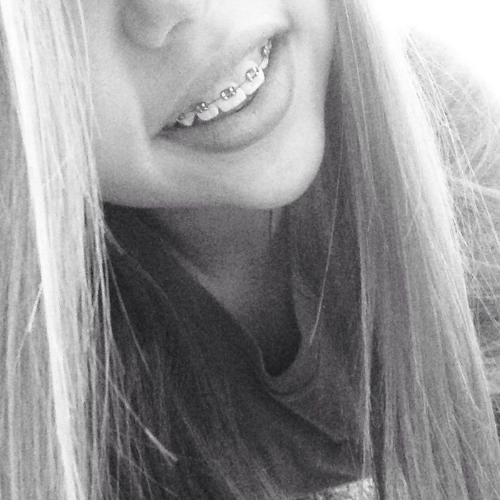 Smile Even When It Hurts.<3
