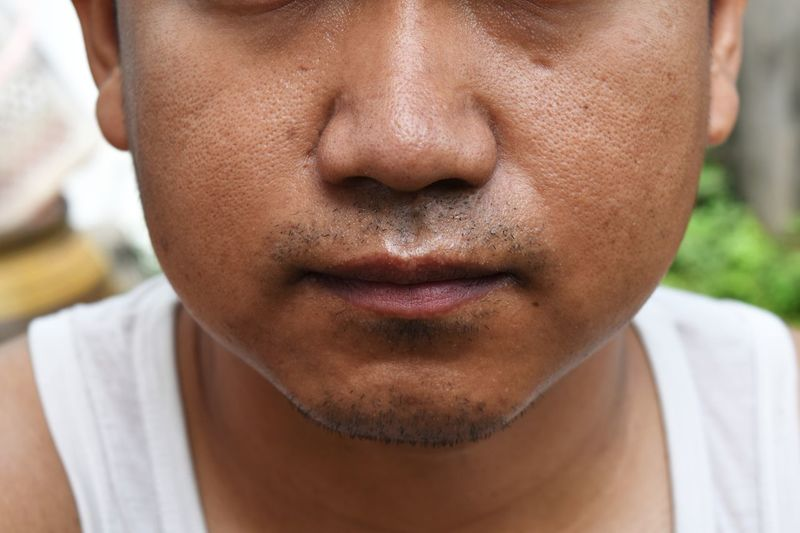 Beard Mustache Mouth Lips Nose Ugly Man Sleep Brown Scar Man Young Asian  TakeCare  Skin Face Oil Pores One Person Close-up Real People Front View Headshot People Young Adult