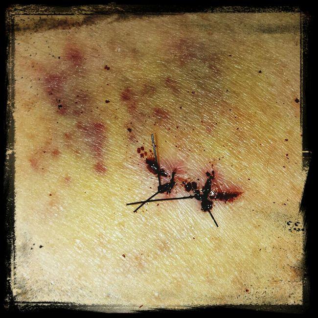 My first stab wound Stitches Stab Knife Flesh Wound