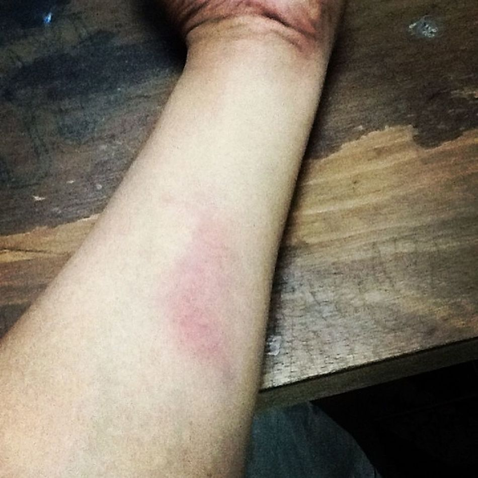 แสบซี๊ดๆ เจ็บนิด ซ่า มาก ยิงธนู ไม่ใส่ Arm Guard ผลคือ ช้ำ 5555 แบบว่า งบหมด เลยไม่ได้ซื้อ